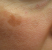 hyperpigmentation taches brunes
