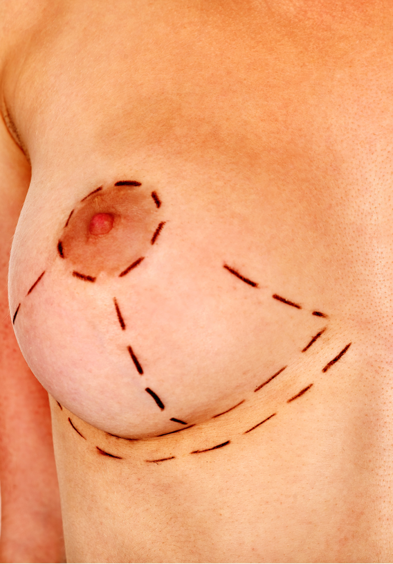 intro-banner-areoles